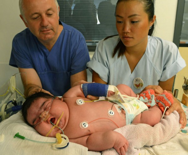 bebelus urias germania