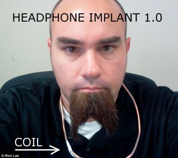 headphone implant